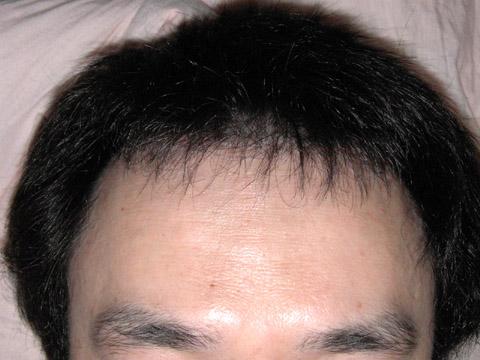 髪の毛のショータイム(ショタ?)