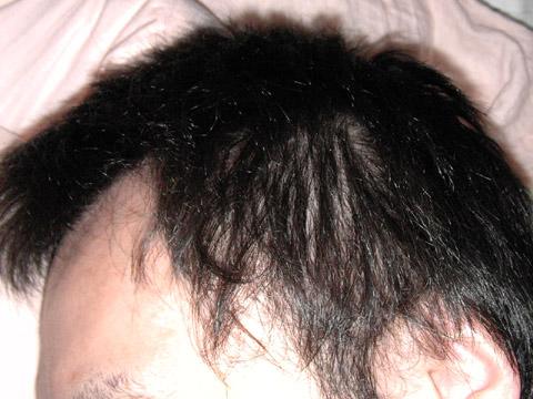 髪の毛が薄くてどうシヨータイヘン(ショタ?)