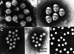 shigevirus2.jpg