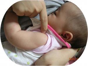 BCG接種前