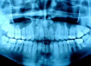 Dental_x-ray